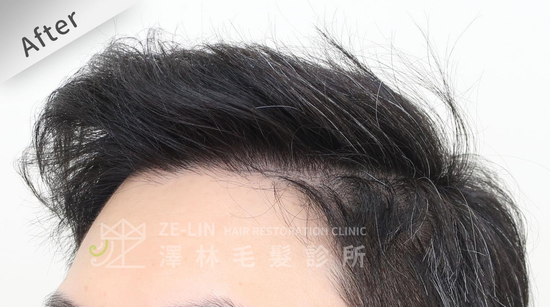 植髮失敗(二次植髮)男生M型禿植髮FUE高密度植髮心得推薦-植髮專家澤林毛髮診所謝宗廷醫師-雄性禿治療(新髮靈)-術後8-2