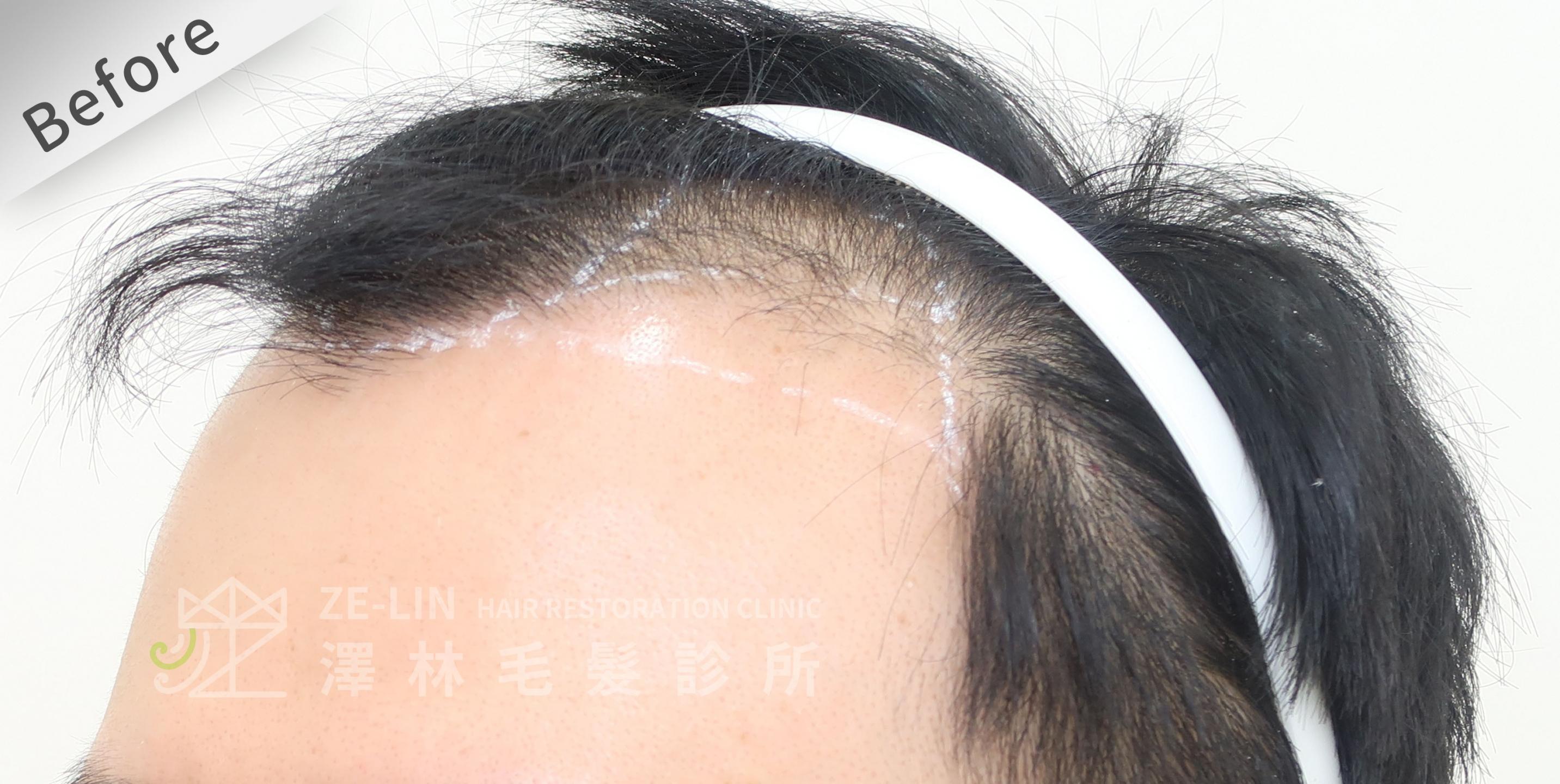 M型禿植髮推薦案例心得分享術前11-3