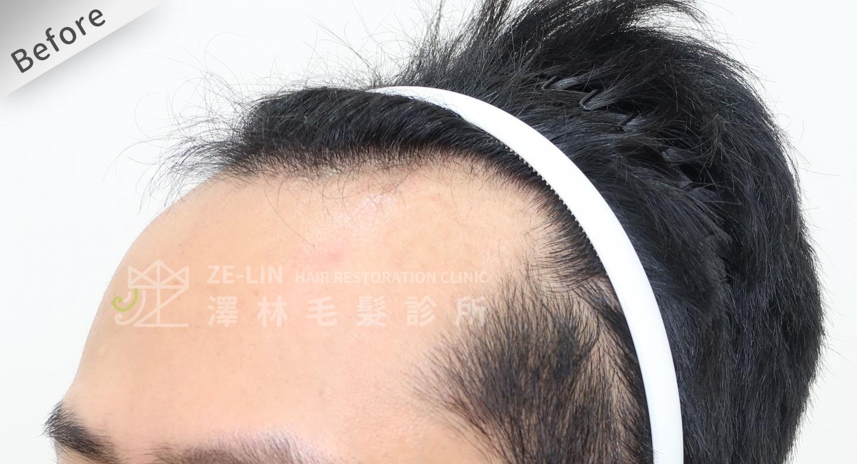 M型禿植髮推薦FUE高密度植髮心得-植髮專家澤林毛髮診所謝宗廷醫師-雄性禿治療(柔沛)-術前7-3