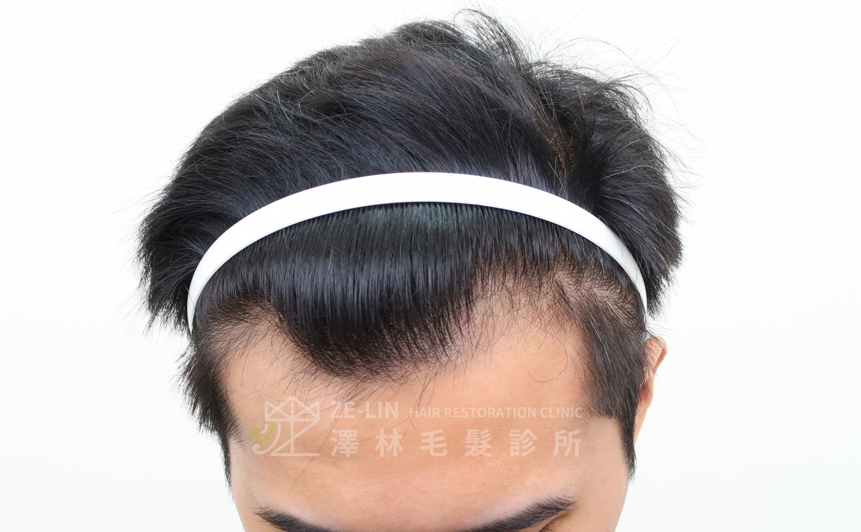 M型禿植髮FUE高密度植髮心得推薦-植髮專家澤林毛髮診所謝宗廷醫師-合併使用柔沛-術前3-1