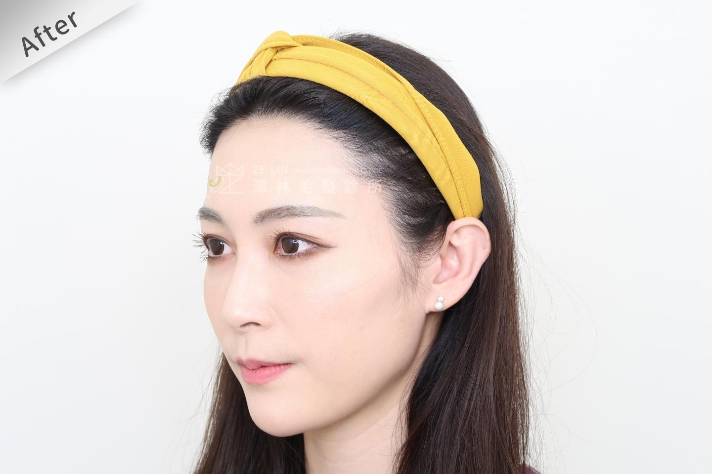 [女性植髮]女性高額頭植髮術後2-3