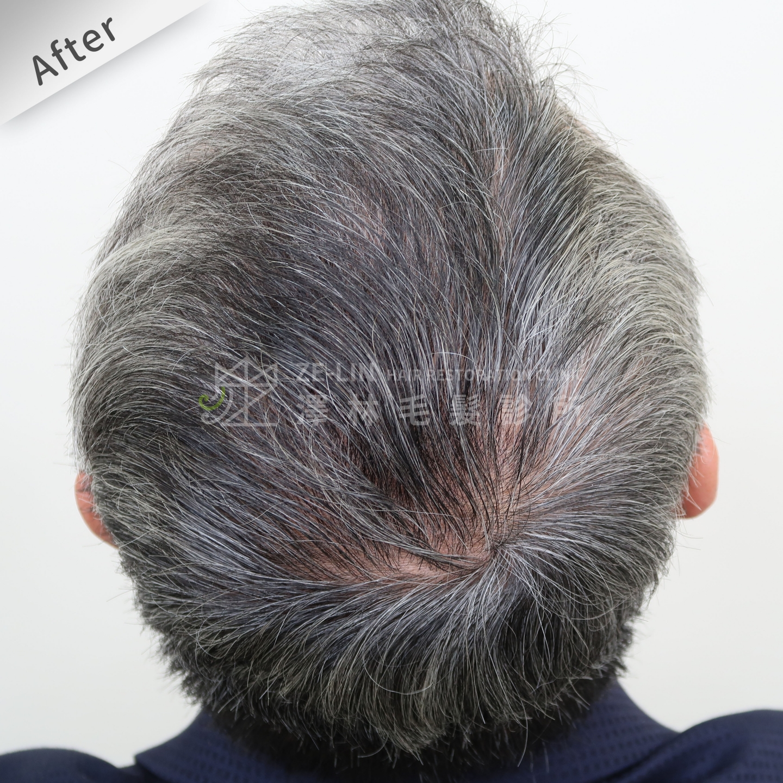 頂部地中海禿頭FUE高密度植髮心得推薦-植髮專家澤林毛髮診所謝宗廷醫師-雄性禿治療(柔沛)-術後3-1