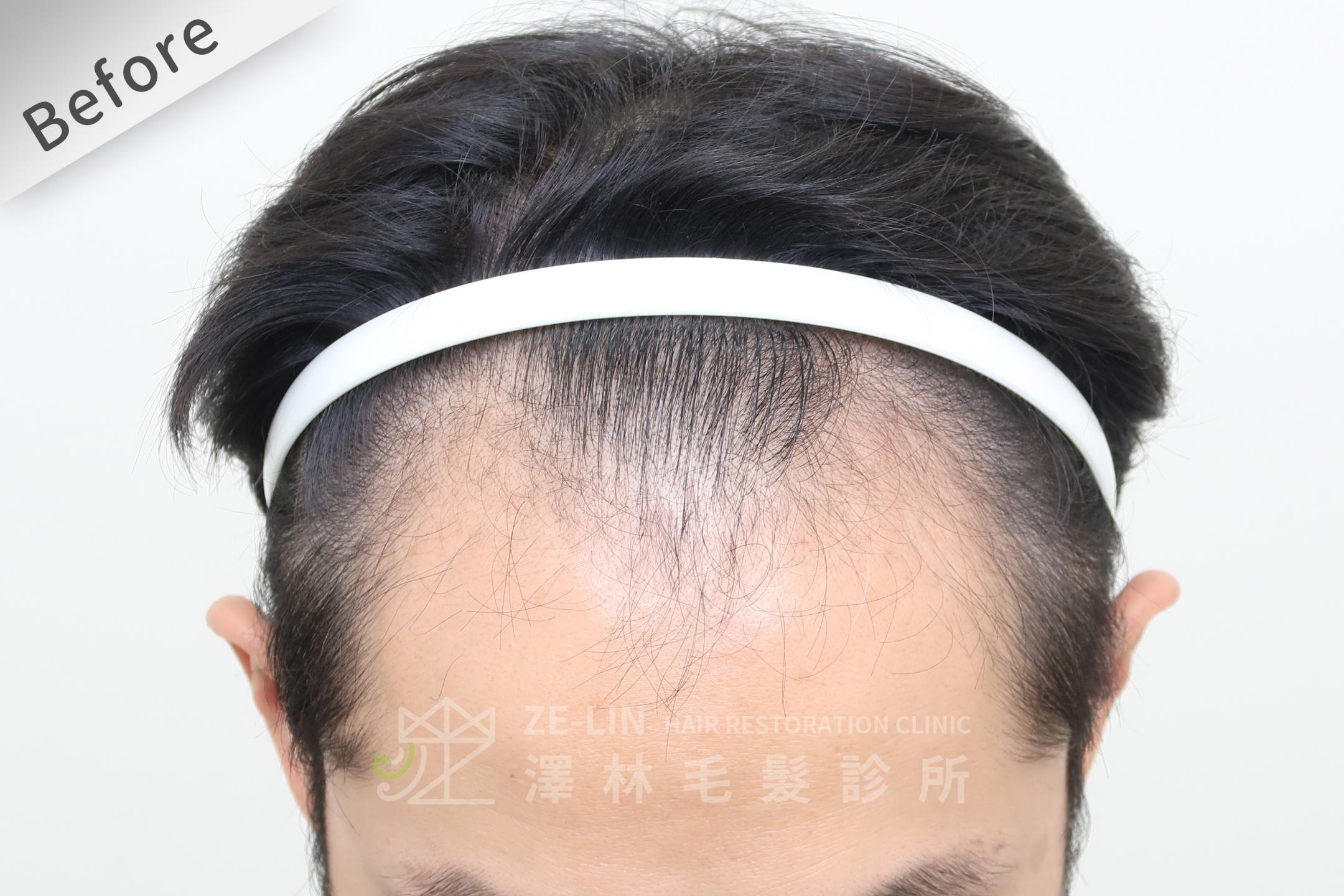 M型禿FUE植髮手術推薦案例心得分享術前