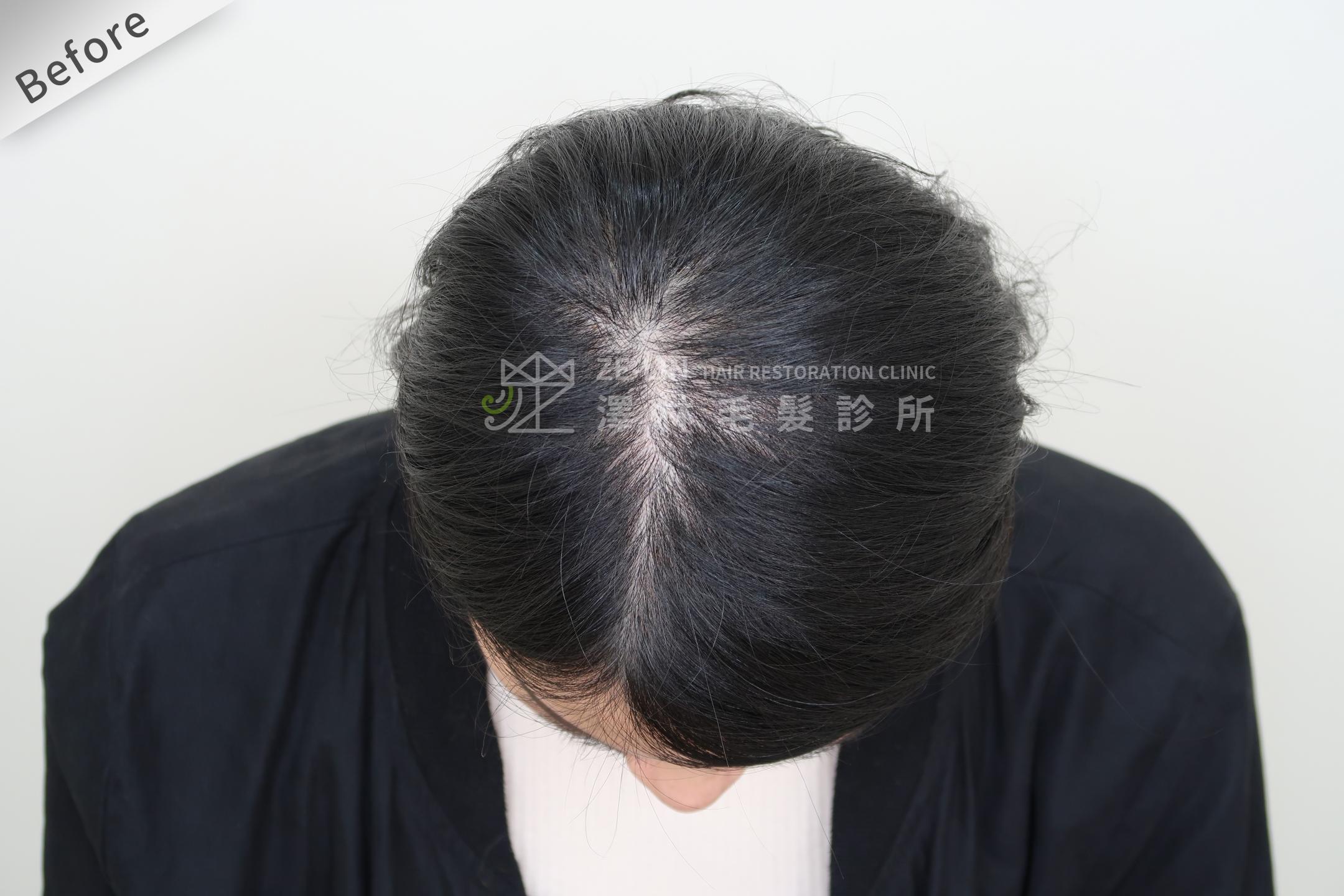 PRP自體生長因子育髮治療女生雄性禿改善頭頂分線術前