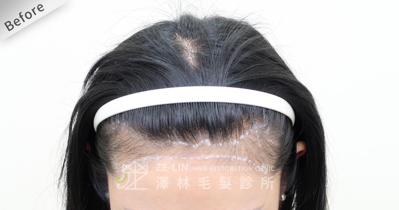 [女性植髮]女生高額頭額角禿頭髮際線免剃FUE植髮-美型髮際線植髮首選澤林毛髮診所謝宗廷醫師-術前3-2