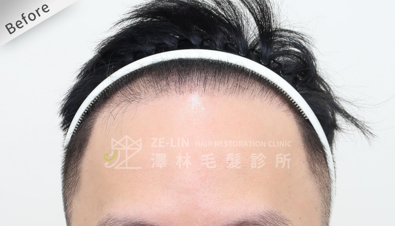 M型禿植髮FUE高密度植髮心得推薦-植髮專家澤林毛髮診所謝宗廷醫師-雄性禿治療(柔沛)-術前4-1
