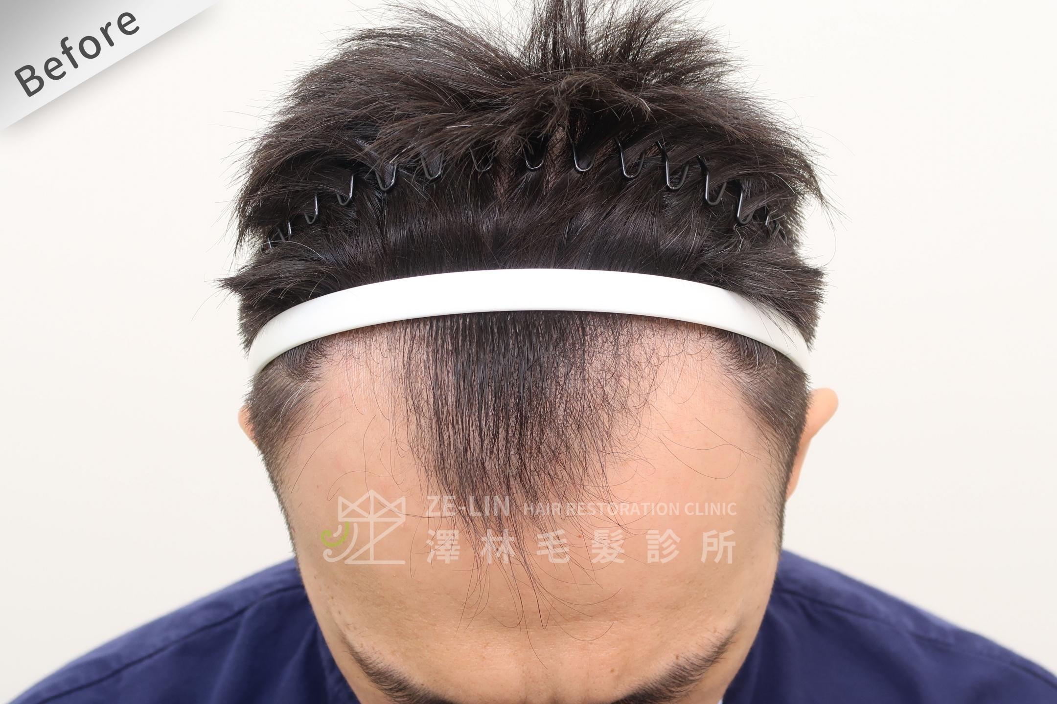 M型禿植髮推薦案例心得分享術前9-2