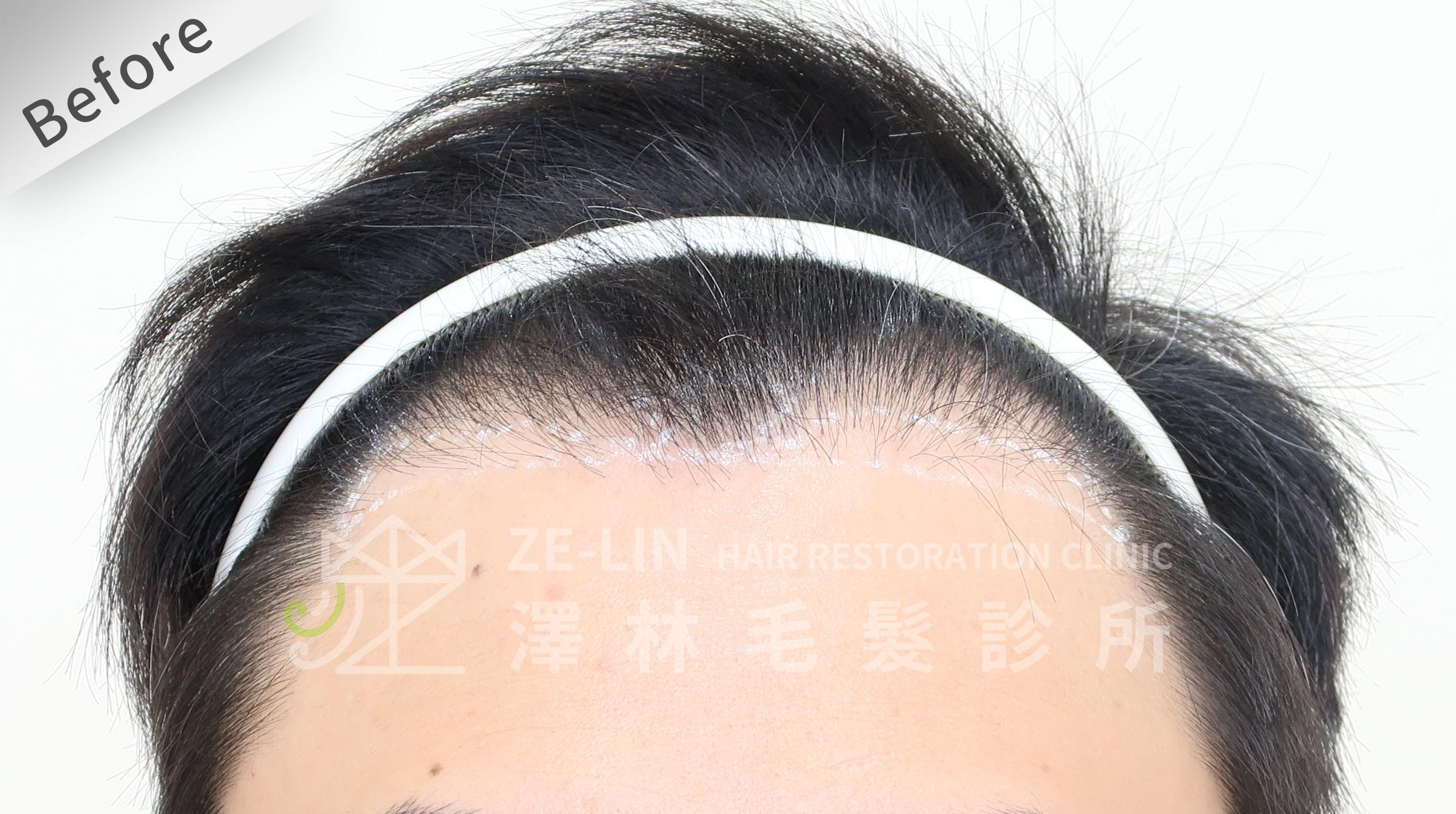 植髮失敗(二次植髮)男生M型禿植髮FUE高密度植髮心得推薦-植髮專家澤林毛髮診所謝宗廷醫師-雄性禿治療(新髮靈)-術前8-1