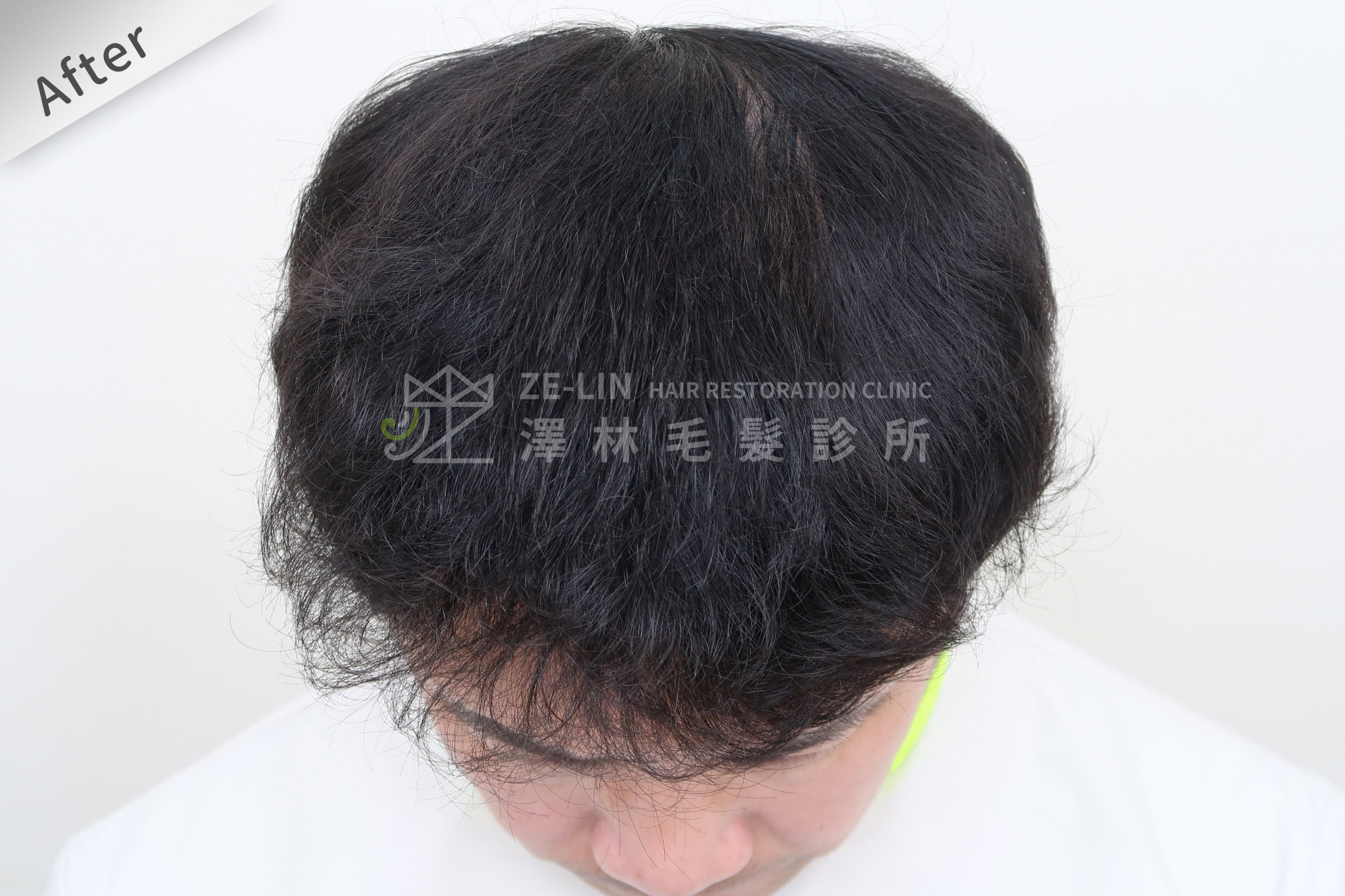 頂部雄性禿巨量植髮FUE高密度植髮心得推薦-植髮專家澤林毛髮診所謝宗廷醫師-雄性禿治療(柔沛+落健生髮水) 術後