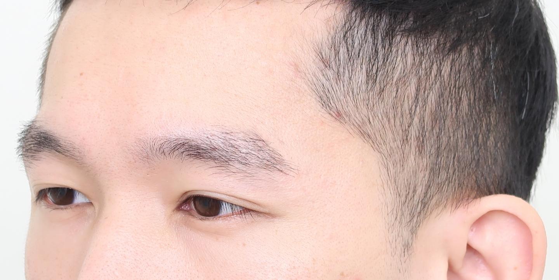 植眉推薦澤林毛髮診所謝宗廷醫師-眉頭稀疏斷眉紋眉繡眉飄眉-術後3-2
