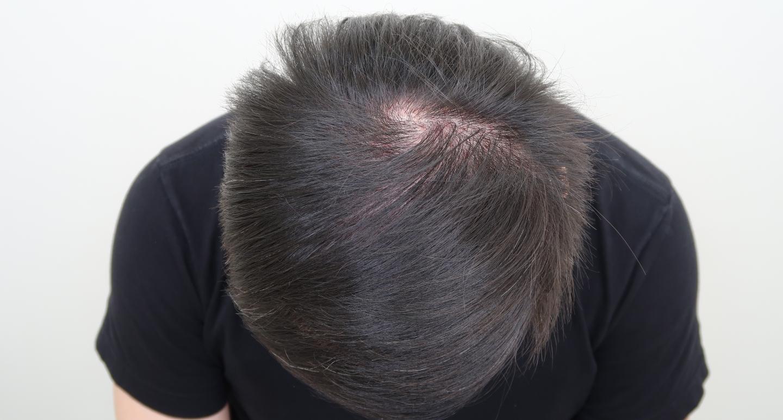 遺傳禿頭植髮心得:術後頭頂