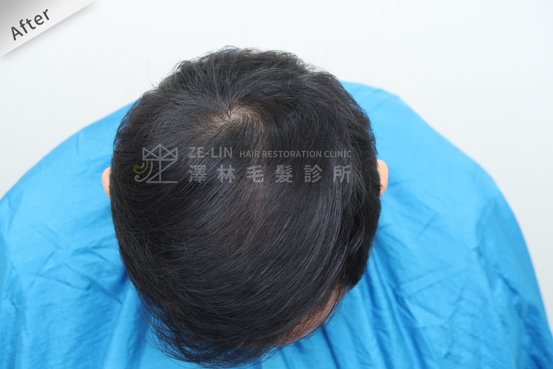 生髮育髮治療PRP自體生長因子注射雄性禿治療頂部術後5
