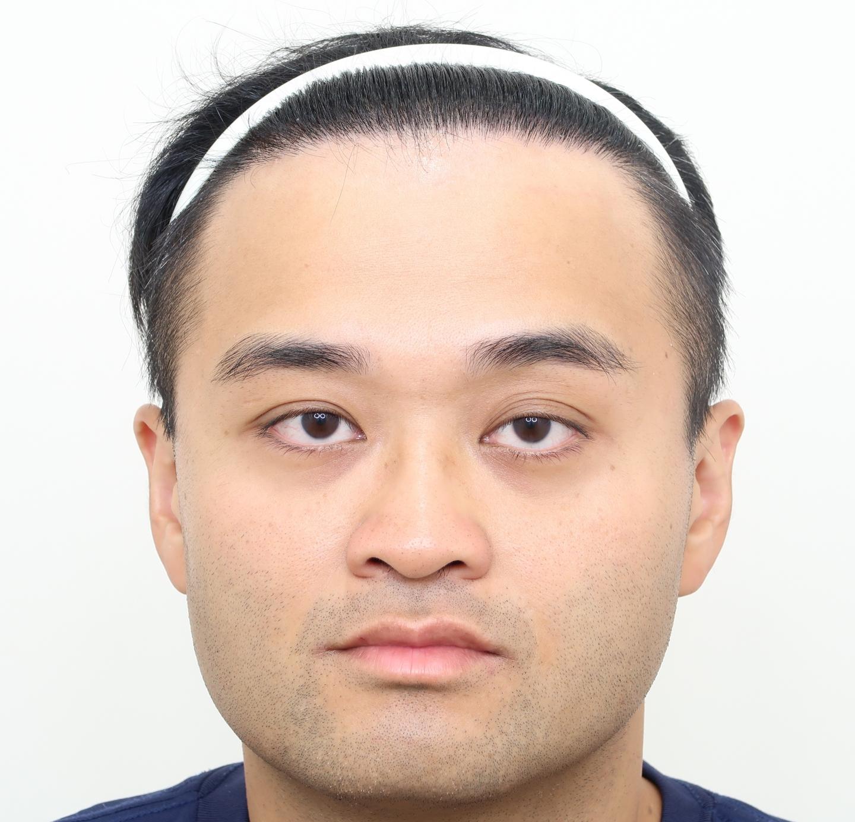 M型禿植髮案FUE高密度植髮心得推薦-植髮專家澤林毛髮診所謝宗廷醫師-合併使用柔沛-術後1-1