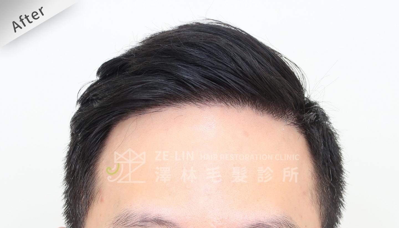 M型禿植髮FUE高密度植髮心得推薦-植髮專家澤林毛髮診所謝宗廷醫師-雄性禿治療(柔沛)-術後4-1