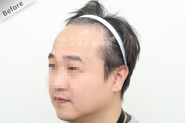 M型禿植髮推薦FUE高密度植髮心得推薦-植髮專家澤林毛髮診所謝宗廷醫師-雄性禿治療(柔沛)-術前10-3