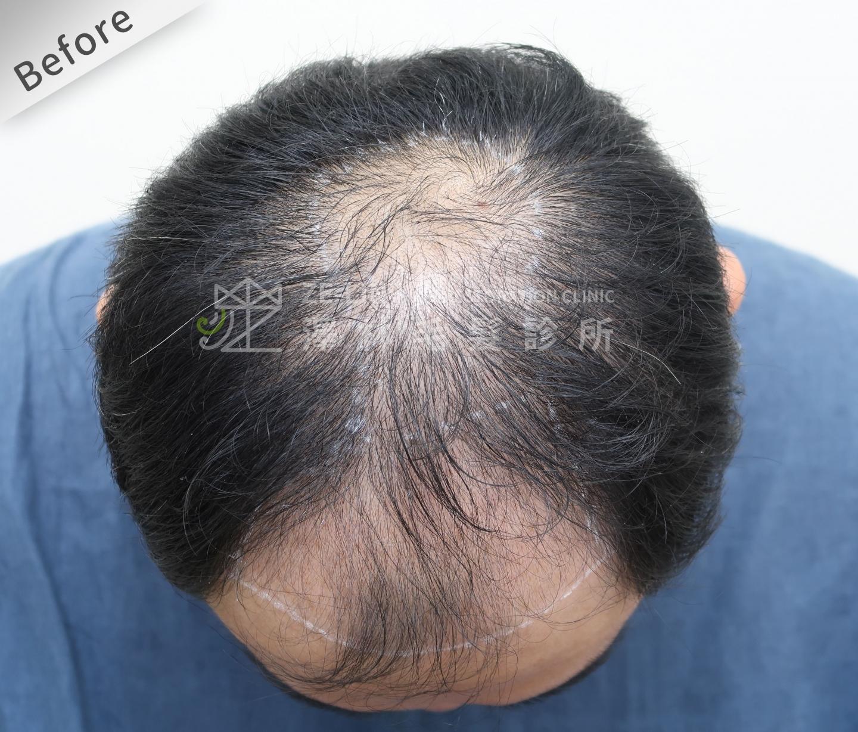 FUE植髮案例:術前頭頂