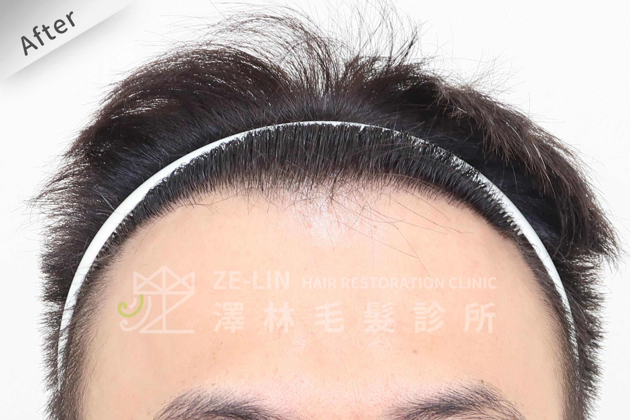 M型禿植髮推薦案例心得分享術後9-1