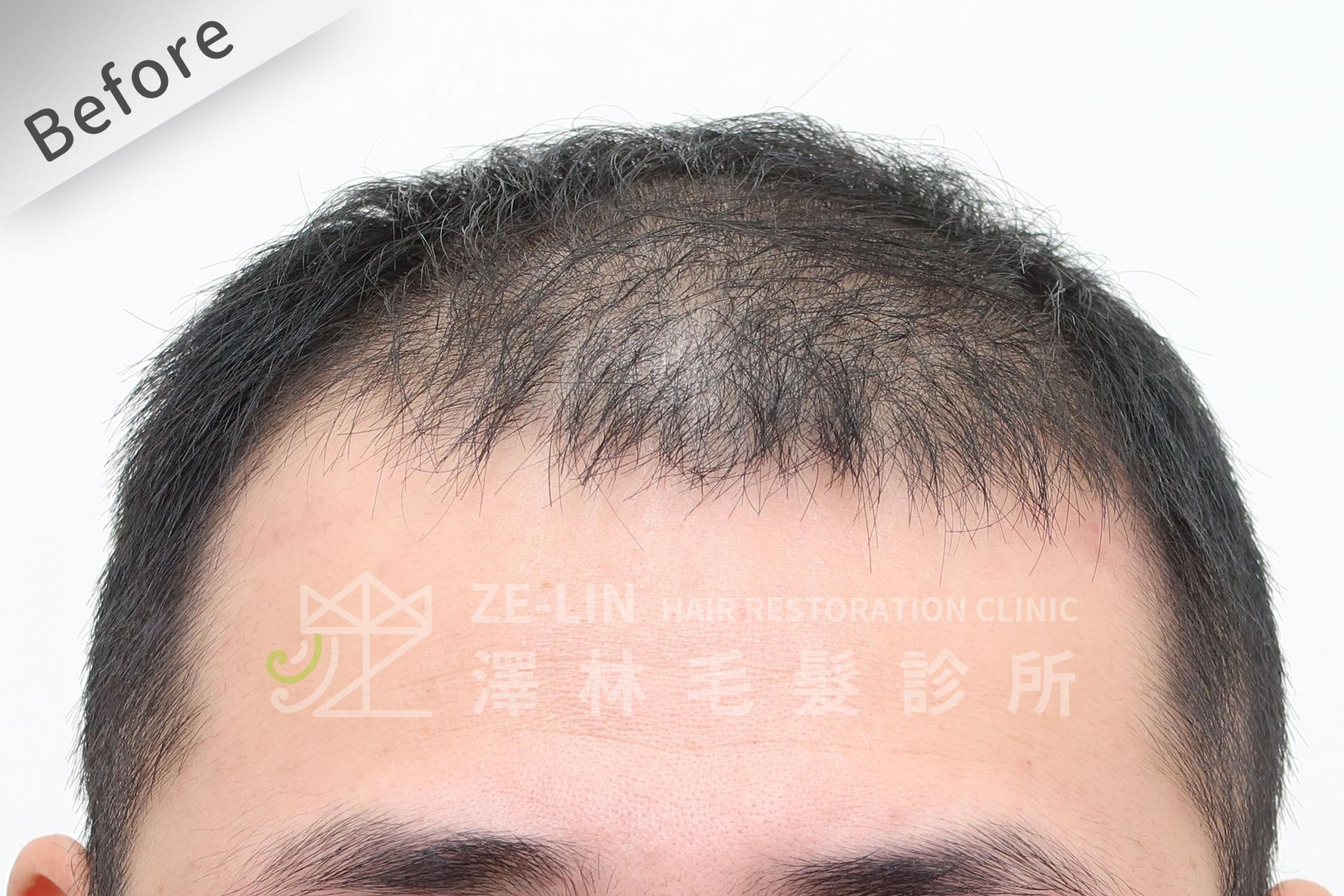 巨量植髮心得:術前前額