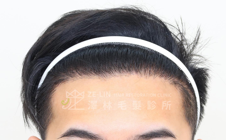 M型禿植髮FUE高密度植髮心得推薦-植髮專家澤林毛髮診所謝宗廷醫師-合併使用柔沛-術後3-1