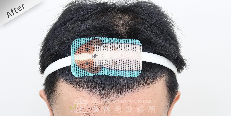 M型禿植髮推薦案例心得分享術後11-1