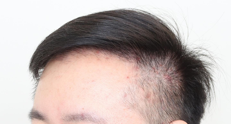 遺傳禿頭植髮心得:術後側面