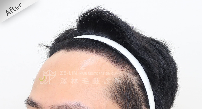 男生M型髮際線FUE高密度植髮心得推薦-植髮專家澤林毛髮診所謝宗廷醫師-雄性禿治療(柔沛)-術後7-3