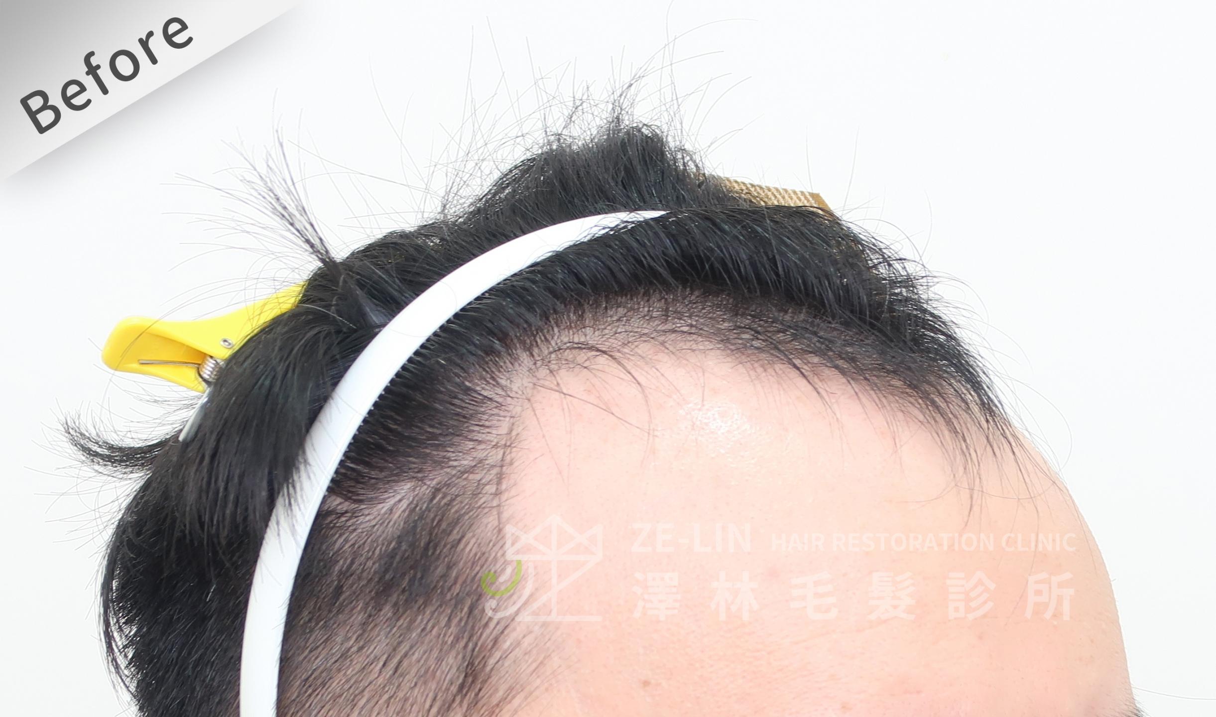 M型禿植髮推薦案例心得分享術前12-2