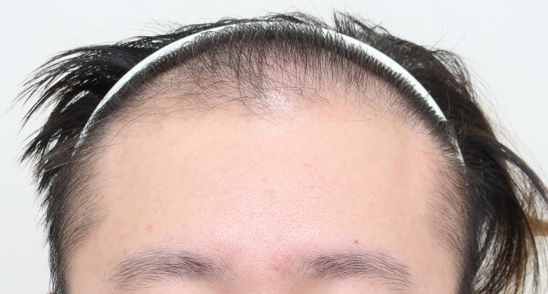 遺傳禿頭植髮心得:術前正面