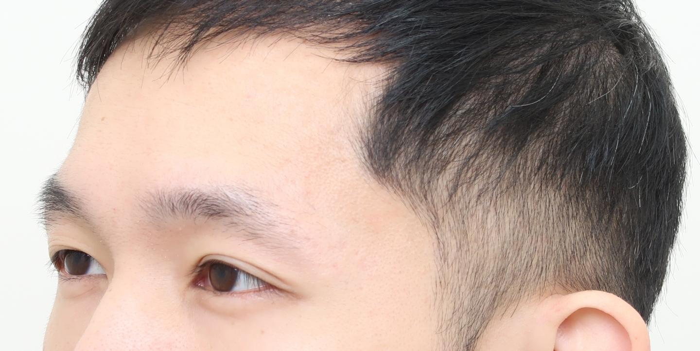 植眉推薦澤林毛髮診所謝宗廷醫師-眉頭稀疏斷眉紋眉繡眉飄眉-術前3-2