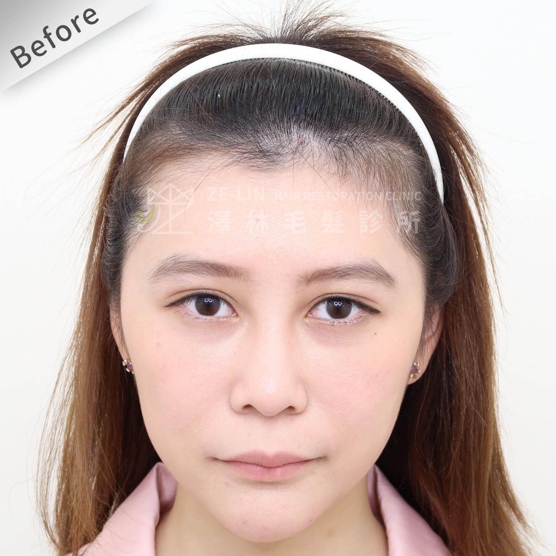 [女性植髮]女生高額頭額角禿頭髮際線免剃髮FUE植髮-美型髮際線植髮首選澤林毛髮診所謝宗廷醫師-術前5-1