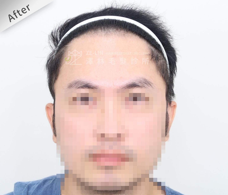 FUE植髮案例:術後正面