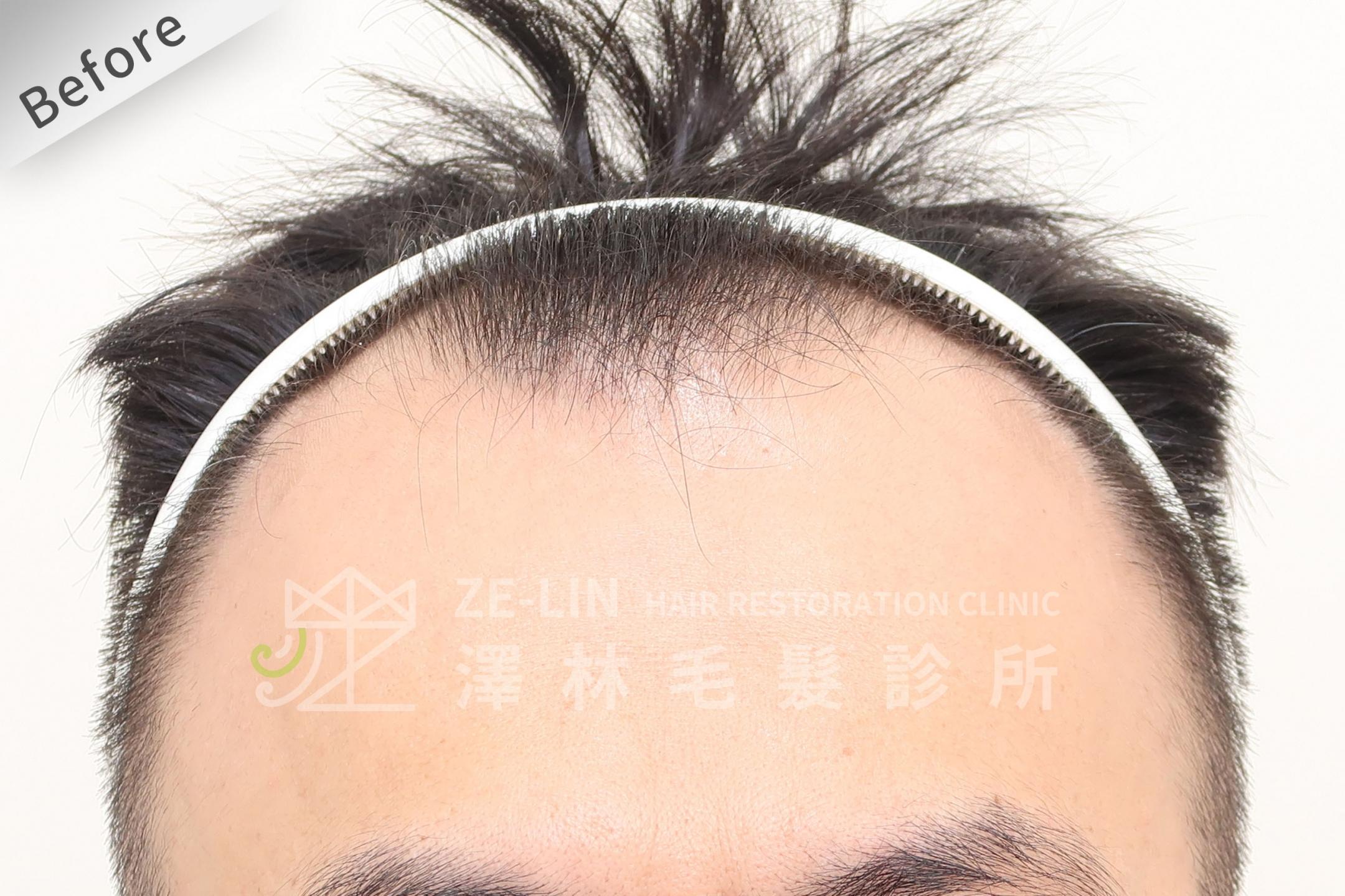 M型禿植髮推薦案例心得分享術前9-1