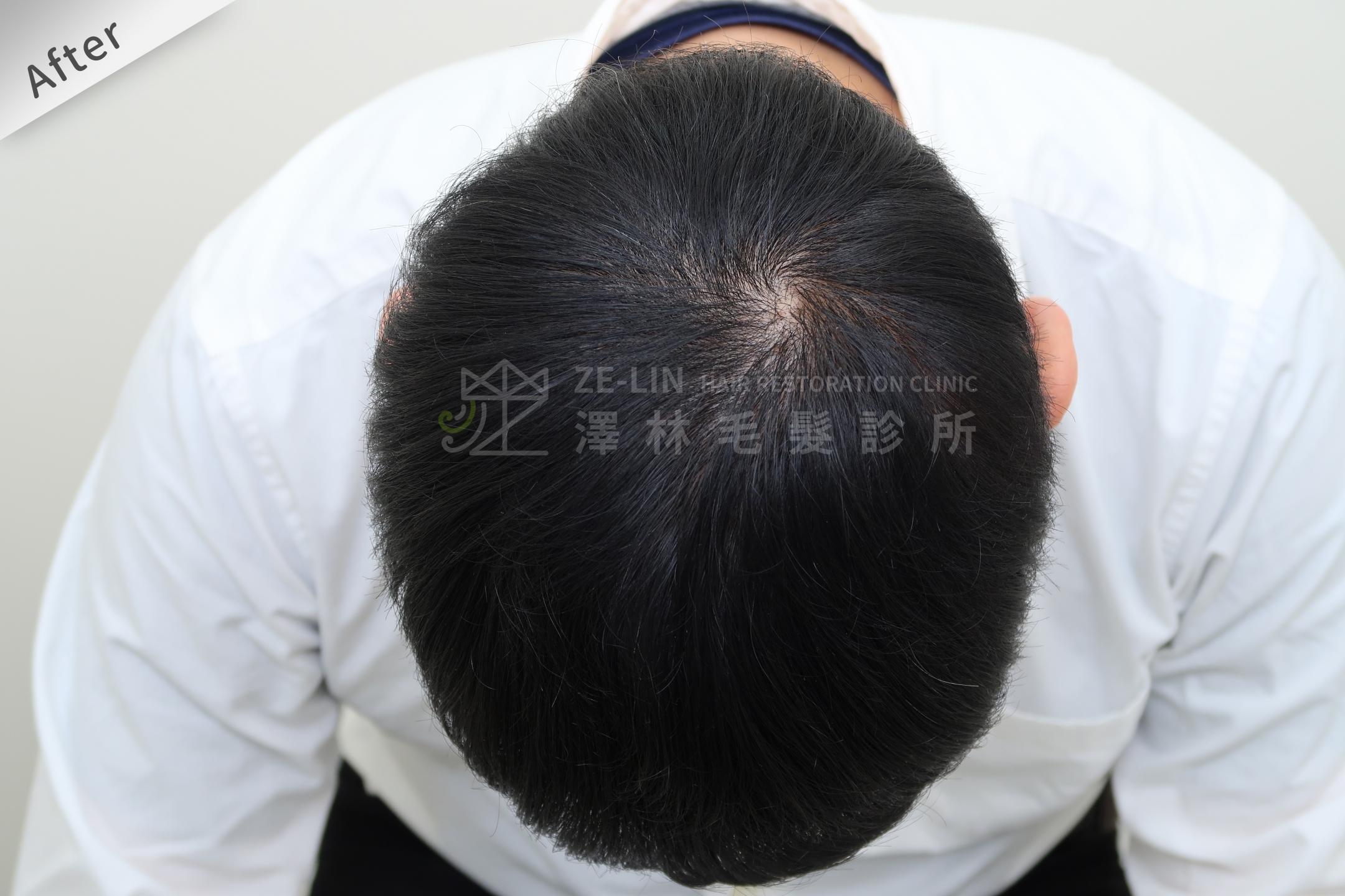 生髮育髮治療PRP自體生長因子注射治療雄性禿頂部術後4