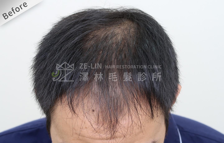 雄性禿植髮心得:術前頭頂