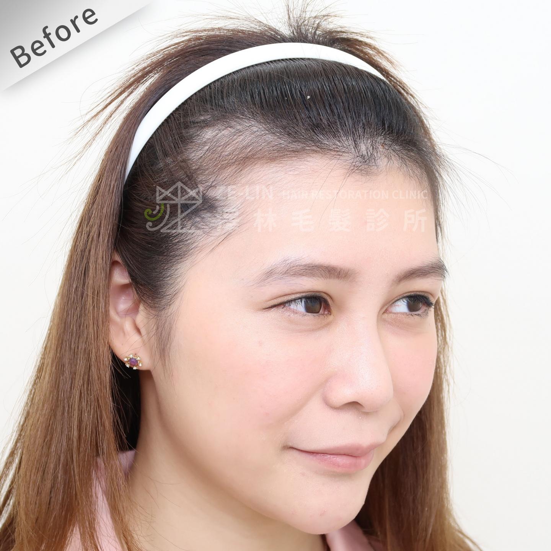[女性植髮]女生高額頭額角禿頭髮際線免剃髮FUE植髮-美型髮際線植髮首選澤林毛髮診所謝宗廷醫師-術前5-2