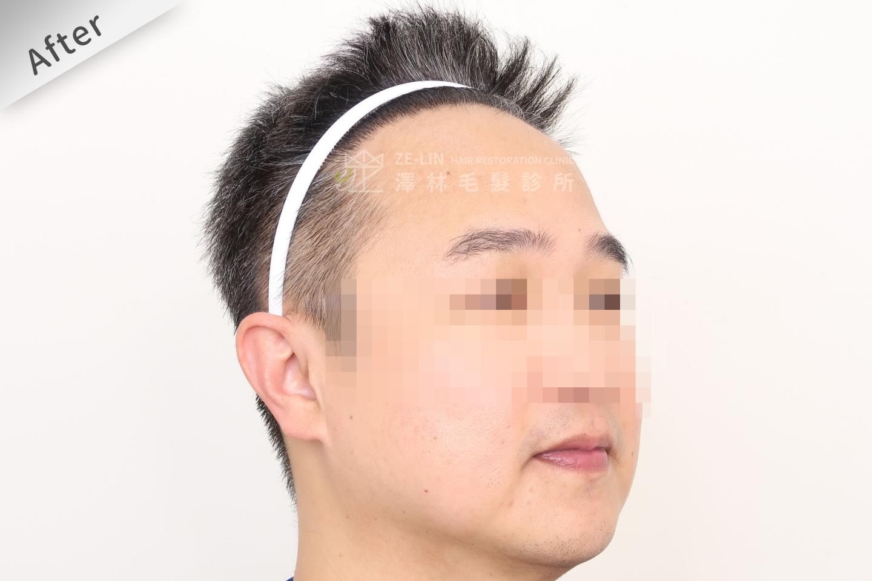 M型禿植髮推薦FUE高密度植髮心得推薦-植髮專家澤林毛髮診所謝宗廷醫師-雄性禿治療(柔沛)-術後10-2