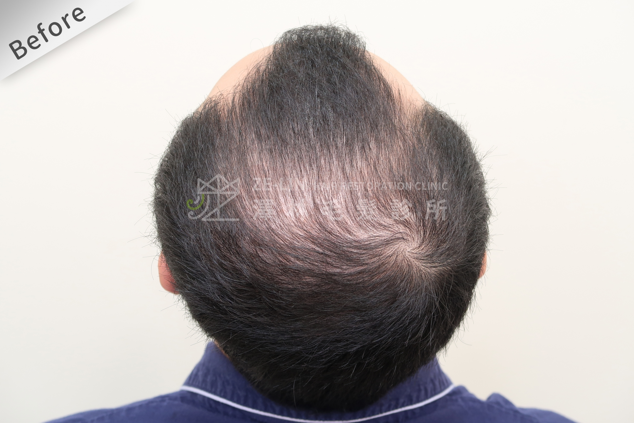 雄性禿植髮評價:術前頭頂