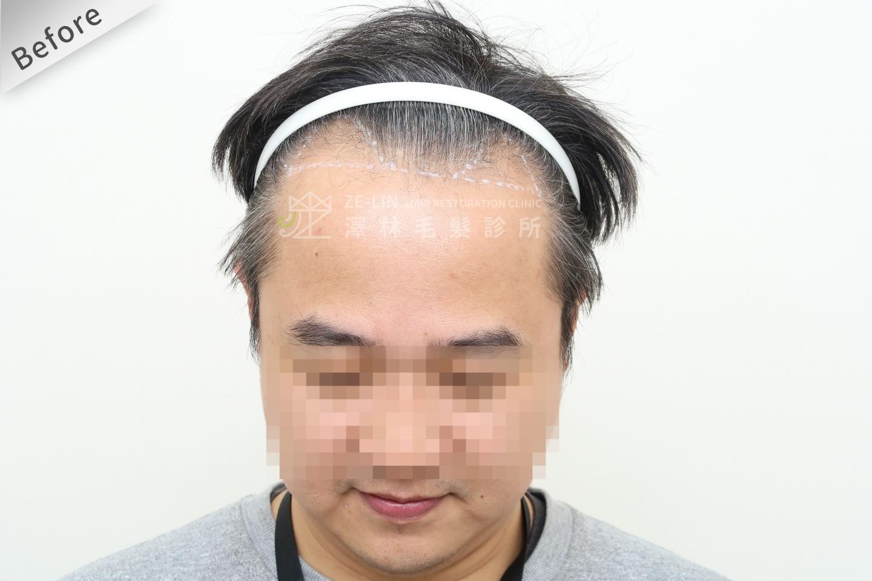 M型禿植髮推薦FUE高密度植髮心得推薦-植髮專家澤林毛髮診所謝宗廷醫師-雄性禿治療(柔沛)-術前10-1