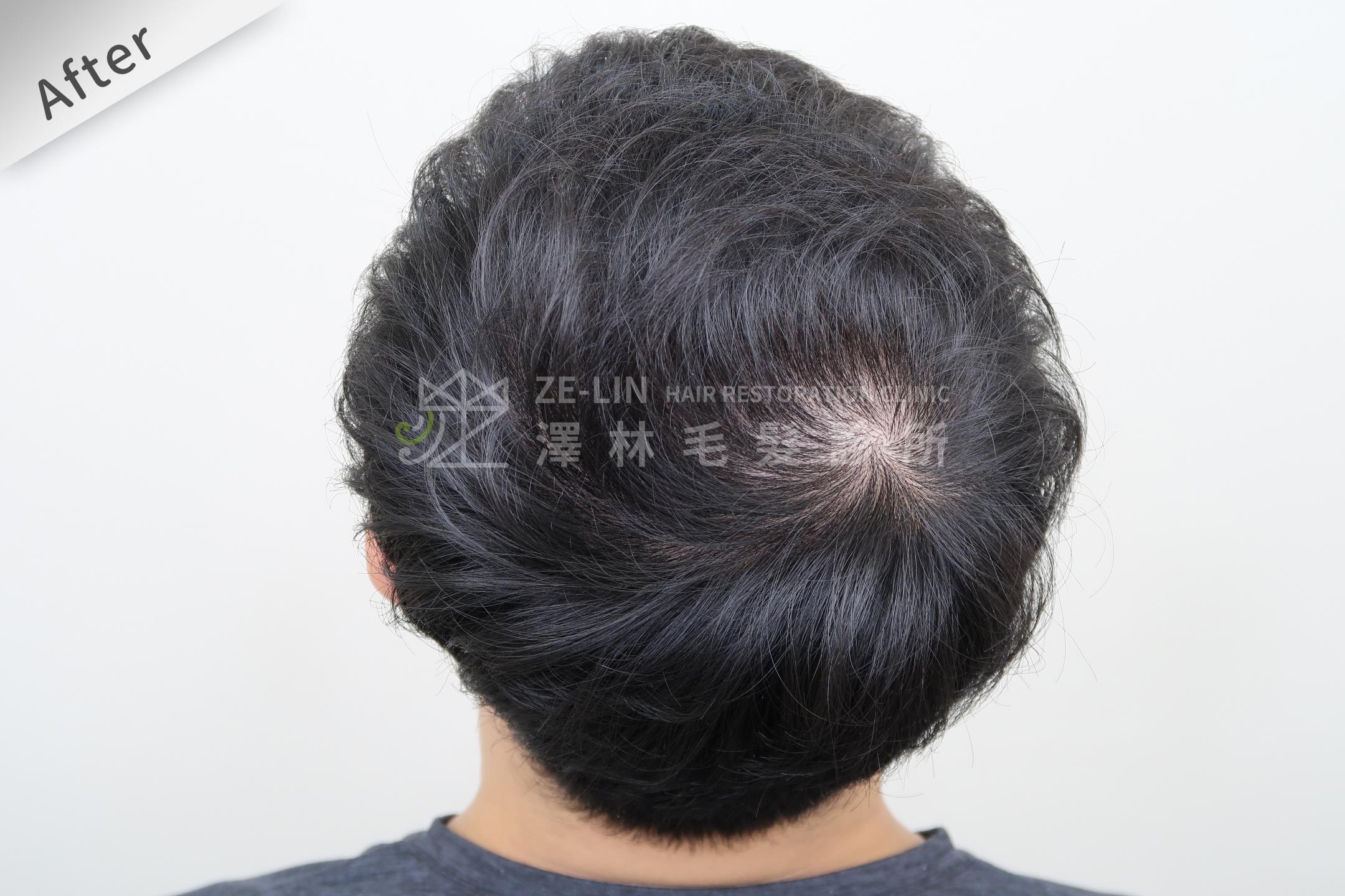 雄性禿植髮評價:術後頭頂