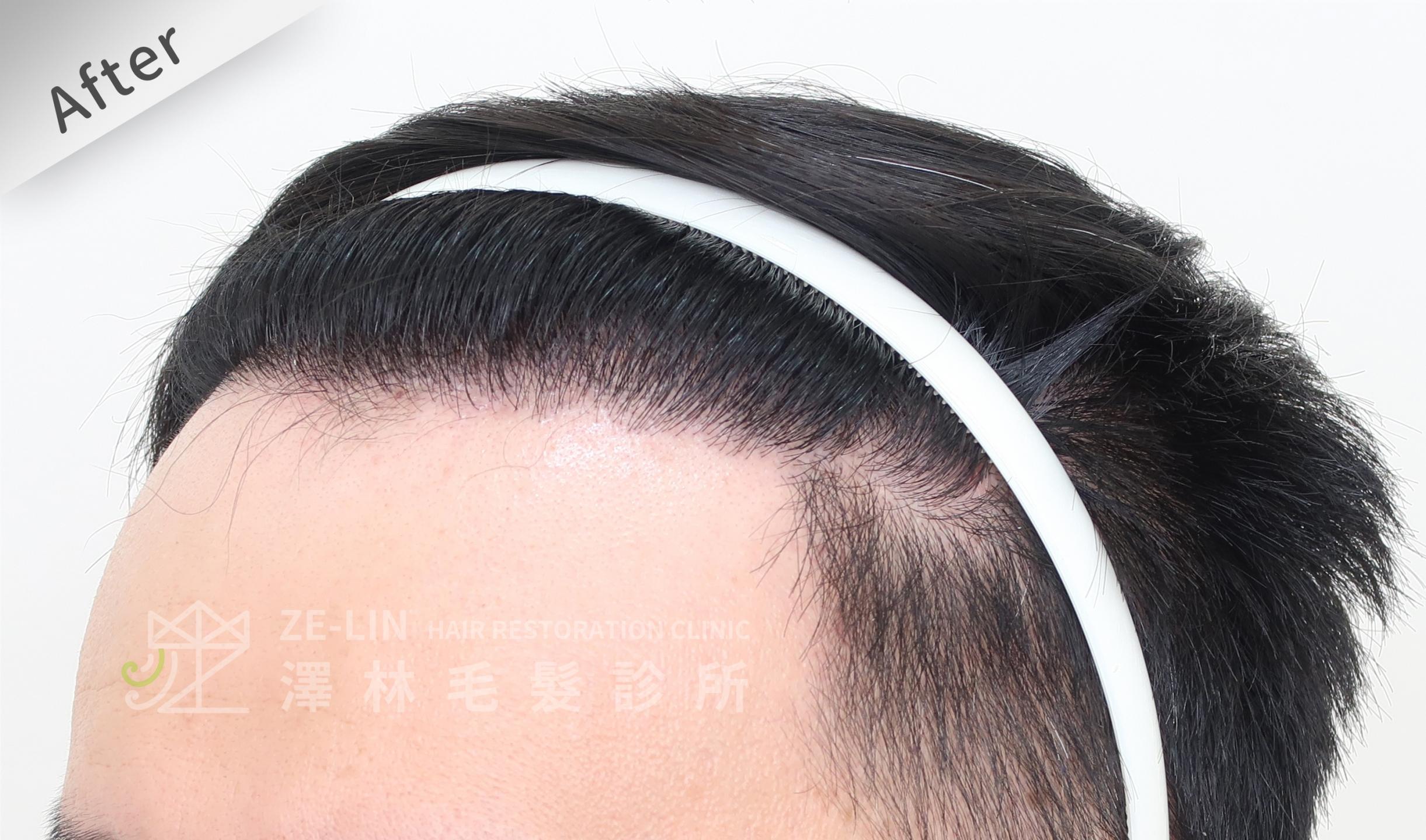 M型禿植髮推薦案例心得分享術後12-3