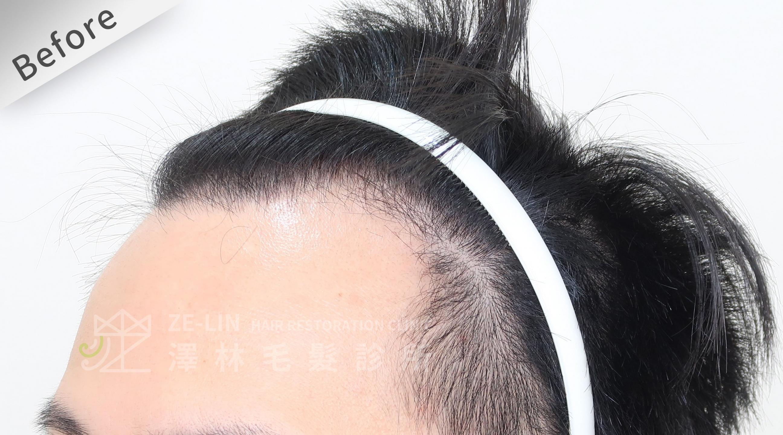 M型雄性髮際線FUE植髮手術-澤林毛髮診所植髮推薦-案例心得分享術前