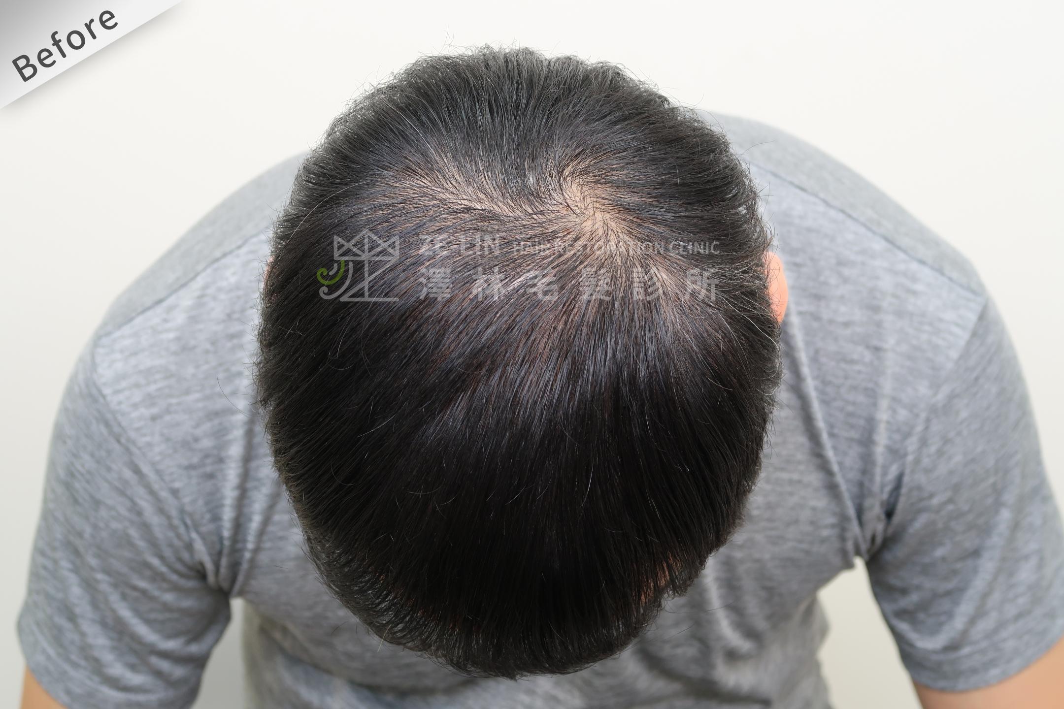 生髮育髮治療PRP自體生長因子注射治療雄性禿頂部術前4