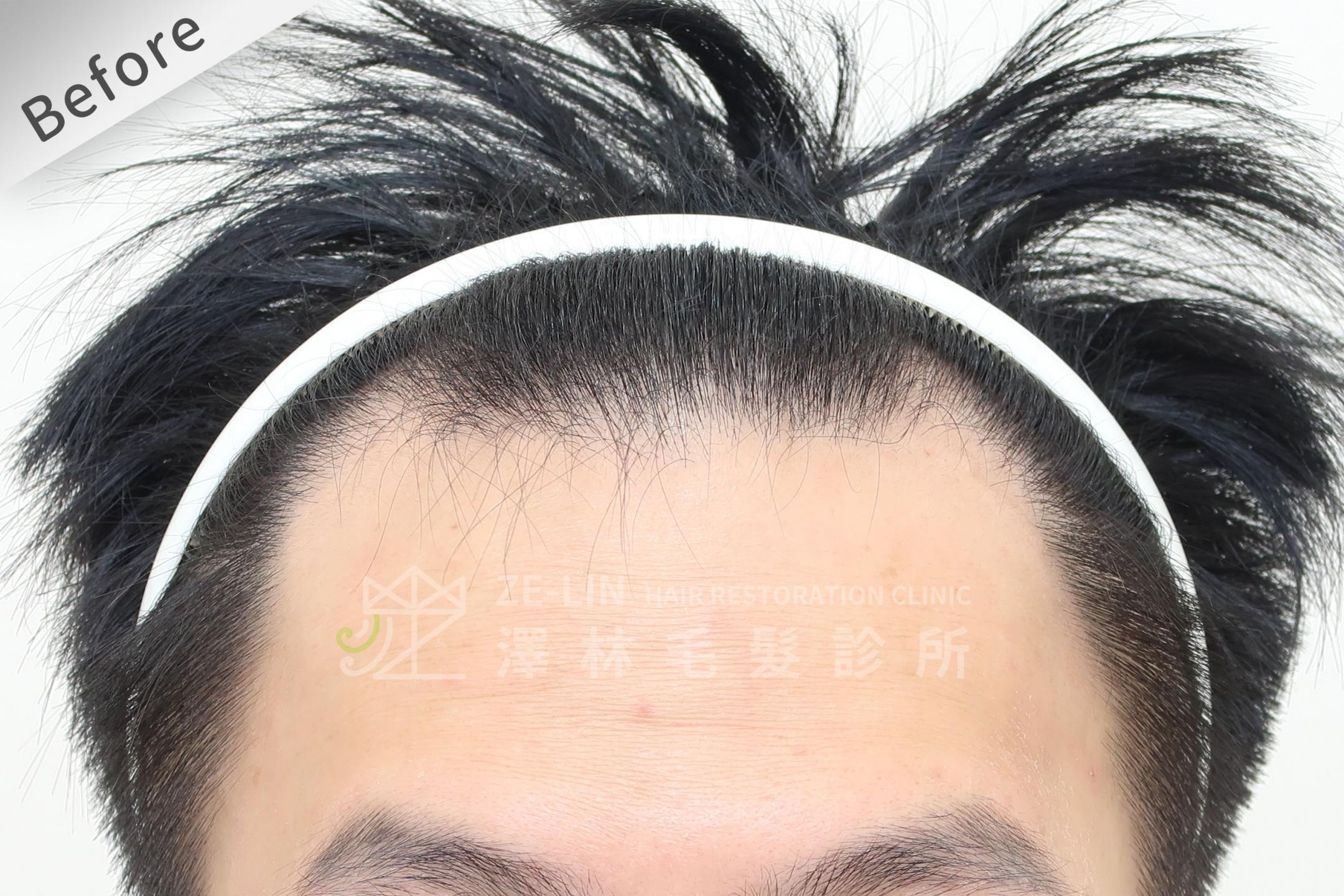 M型雄性髮際線FUE植髮手術高存活率案例心得分享術前