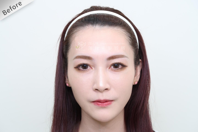 [女性植髮]女性高額頭植髮術前2-1