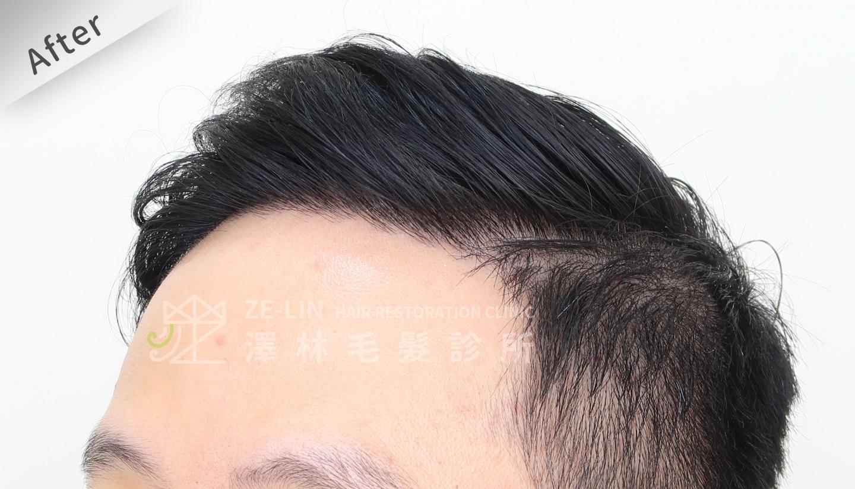 M型禿植髮案例FUE高密度植髮心得推薦-植髮專家澤林毛髮診所謝宗廷醫師-雄性禿治療(柔沛)-術後4-2