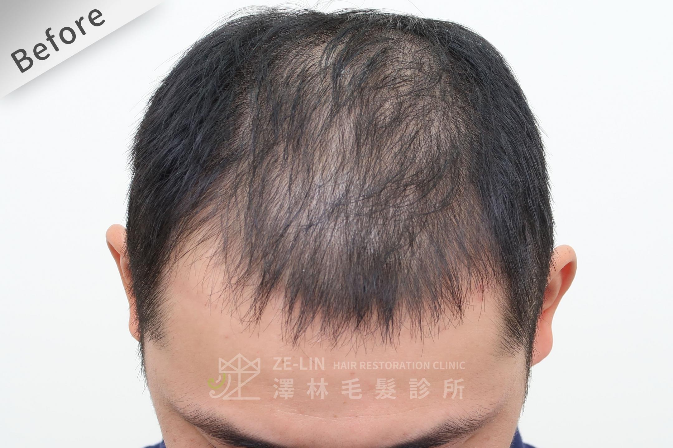 巨量植髮心得:術前頭頂