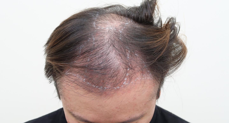 遺傳禿頭植髮心得:術前頭頂