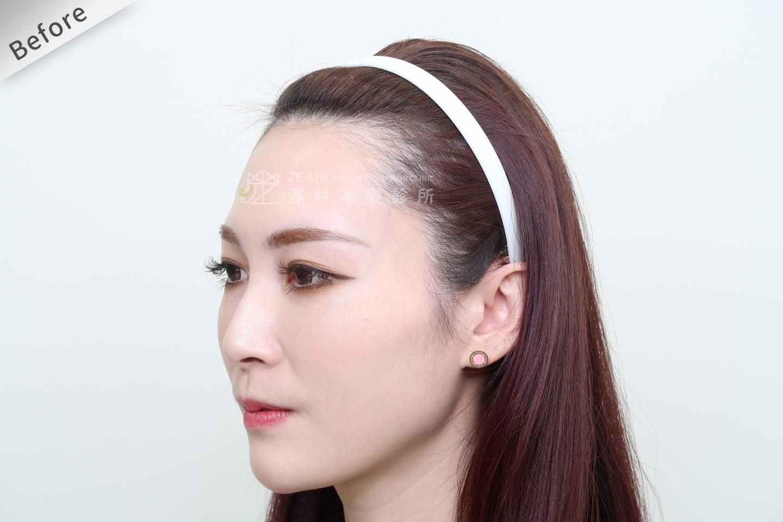 [女性植髮]女性高額頭植髮術前2-3