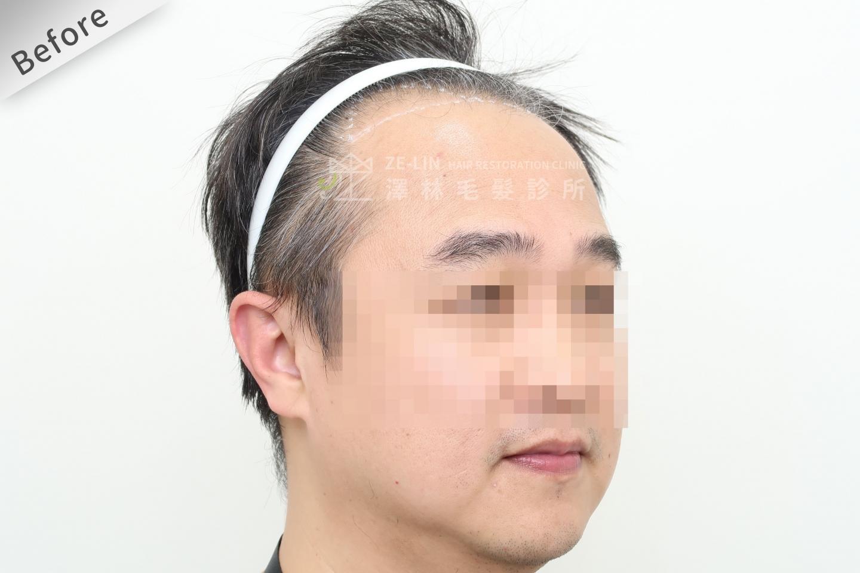 M型禿植髮推薦FUE高密度植髮心得推薦-植髮專家澤林毛髮診所謝宗廷醫師-雄性禿治療(柔沛)-術前10-2