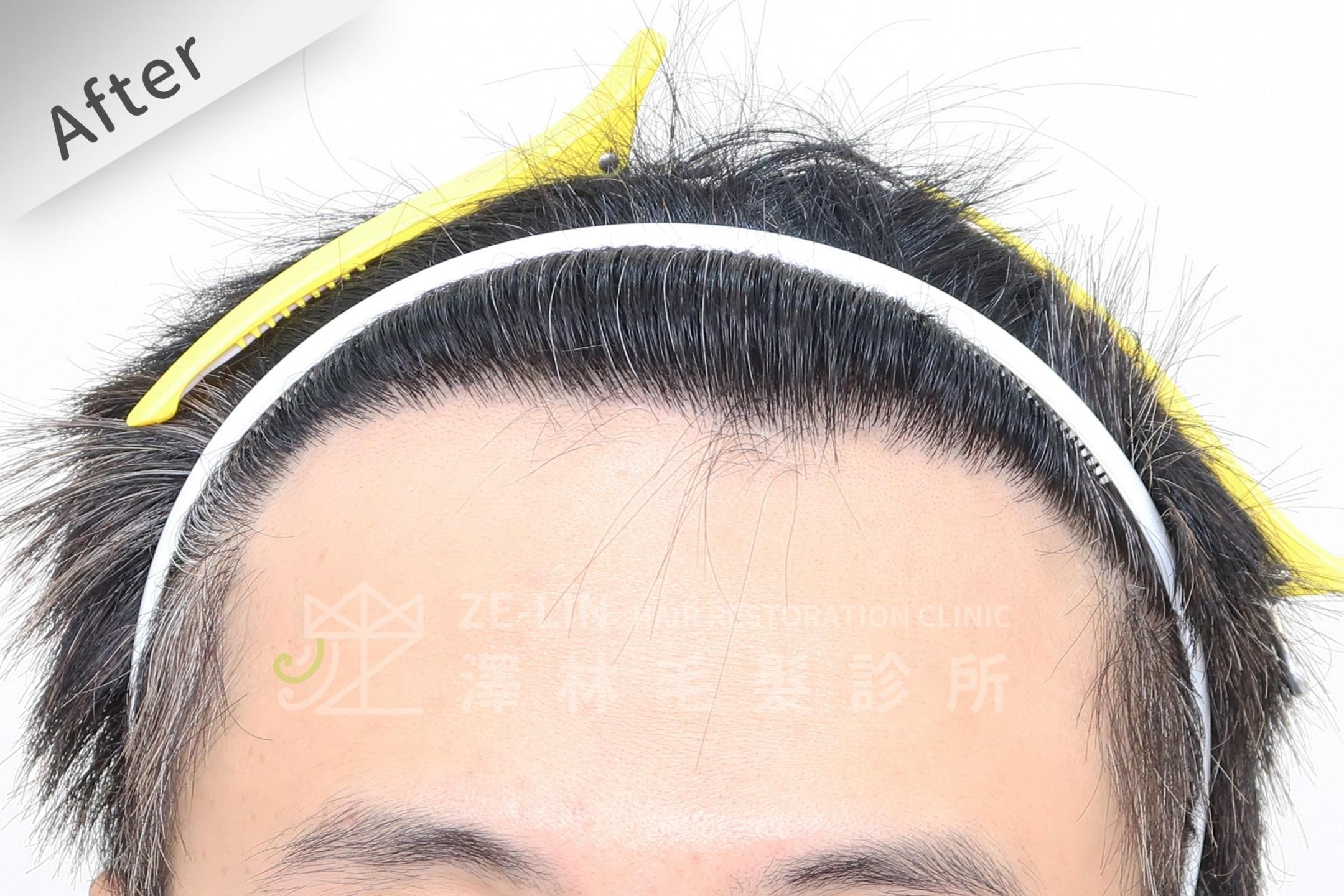 M型雄性髮際線FUE植髮手術-謝宗廷醫師植髮推薦-案例心得分享術後
